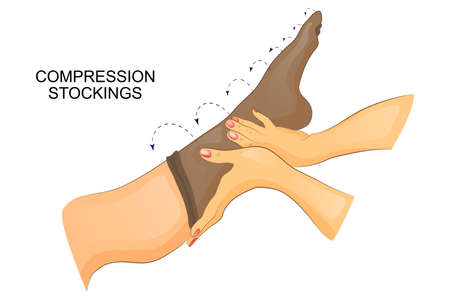 edema: vector illustration of dressing compression stocking on the leg.
