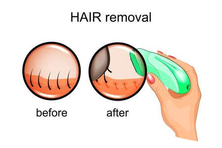 epilator: vectory illustration of a hair removal epilator
