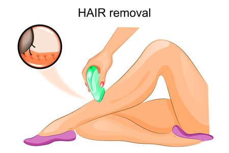 epilator: vector illustration of a hair removal epilator Illustration