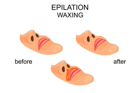 waxing: vector illustration of removal of a mustache. waxing in women.