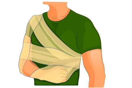 ilustración vectorial de vendajes de fijación en la fractura