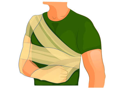 vector illustration of fixation bandages at fracture