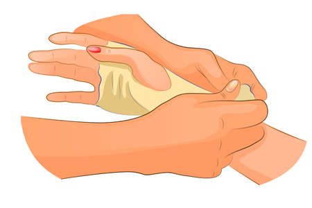 contortion: vector illustration of a bandage in case of injury of wrist joint Illustration