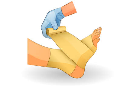 vector illustration of a bandage in case of injury of the ankle joint Vectores