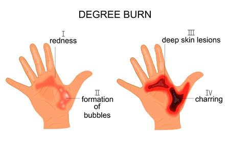 vector illustration of burn the hands of four degrees Imagens - 72205095
