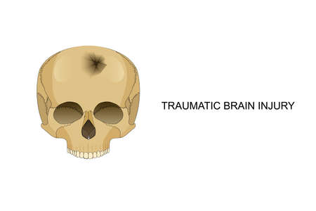 contortion: vector illustration of traumatic brain injury. damage to the bones of the skull