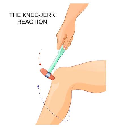 illustrazione di un riflesso del ginocchio in neurologia