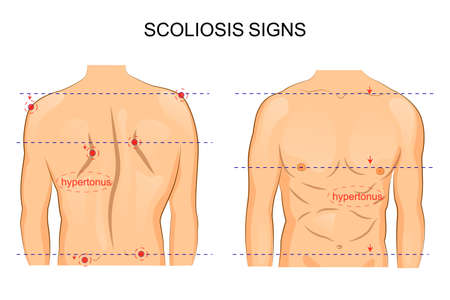 vector illustration of scoliosis of the spine. signs