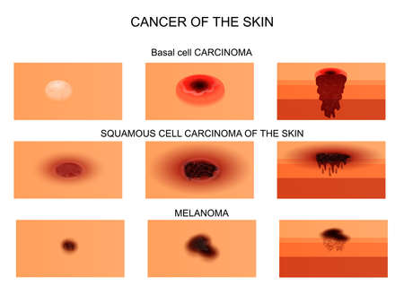 malignant growth: vector illustration of skin cancer. in the initial stage and at the stage of necrosis. the sectional view.