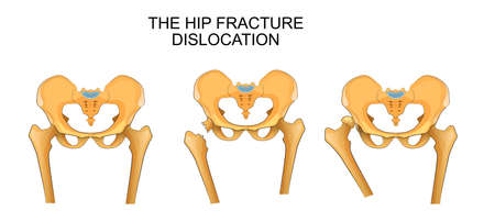 contortion: vector illustration of a pelvis, hip fracture. hip dislocation