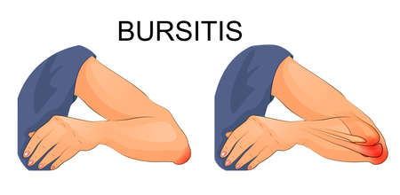 vector illustration of bursitis of the elbow joint.