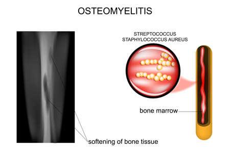 Vector illustration of bone lesions osteomyelitis Illustration