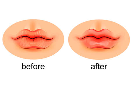 exfoliation: vector illustration of lips dry and after moistening Illustration