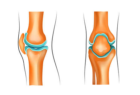 cyst: vector Illustration of a healthy knee joint Illustration