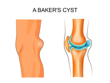 osteoarthritis: vector Illustration of Bakers cyst. traumatology and orthopedics
