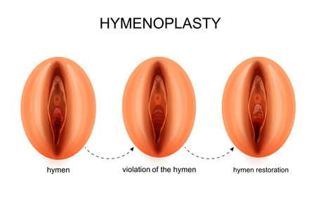 Illustration vectorielle d'une restauration de l'hymen Vecteurs