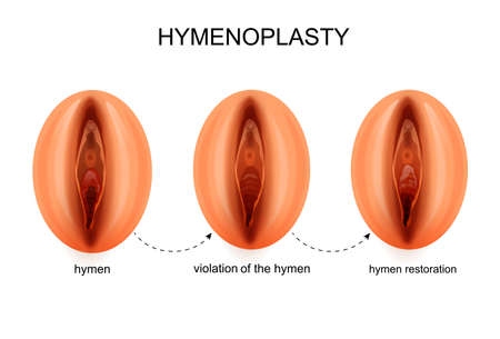 Vector Illustration Of A Hymen Restoration Royalty Free Cliparts