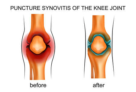cyst: vector illustration of a puncture synovitis of the knee joint Illustration