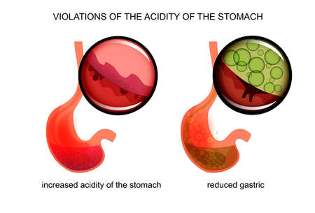 esophageal: vector illustration of high and low acidity of the stomach