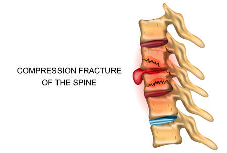 ortopedia: vector illustration of a compression fracture of the spine