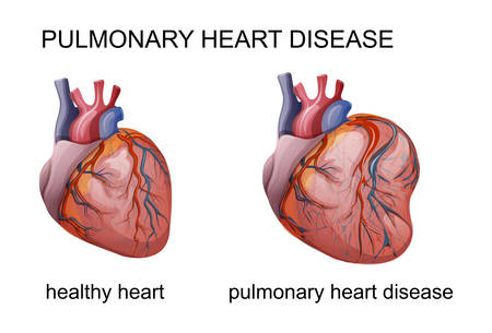 vector illustration of pulmonary heart disease. cardiology