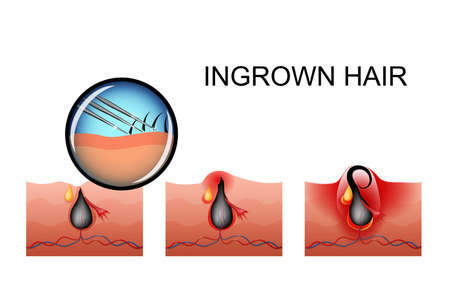vector illustration of ingrown hair, the maturation of the pimple