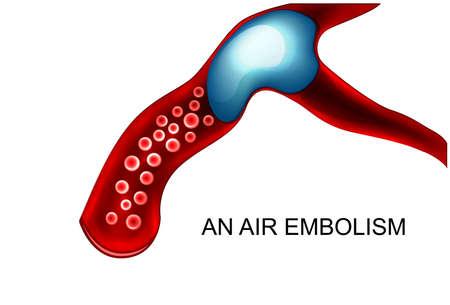 cerebral artery: vector illustration of air embolism blood vessel