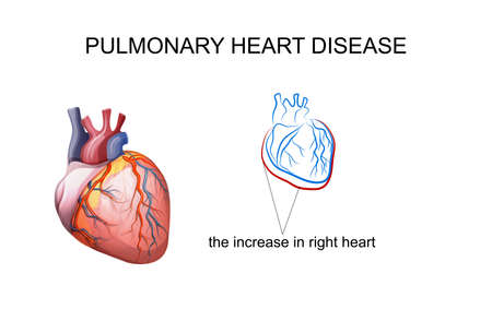 vector illustration pulmonary heart disease