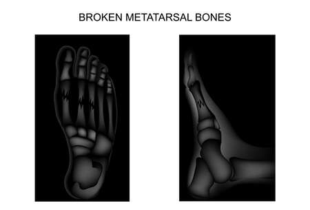 vector illustration of fractures of the metatarsal bones of the foot Illustration