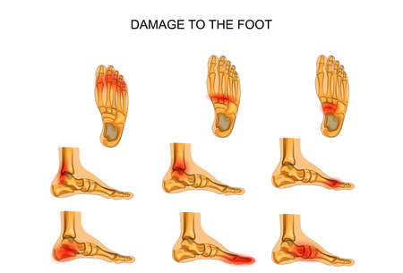 vector illustration of injuries of the foot Vettoriali