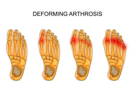 다리의 변형 arthrosis의 벡터 일러스트 레이 션. 발의 골격 스톡 콘텐츠 - 77956949