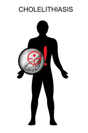 heartburn: illustration of gallstone disease. pain and symptoms