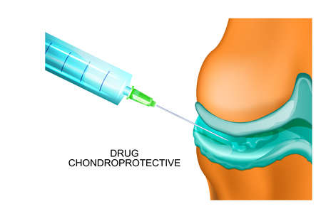 Vector illustration of an injectable treatment of joints
