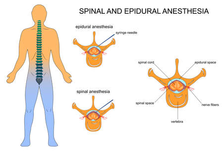 A vector illustration of epidural and spinal anaesthesia Stock Illustratie