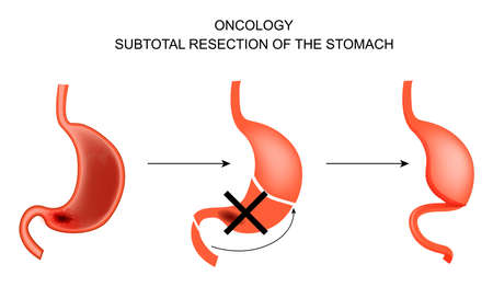 resection: vector illustration of a Subtotal gastrectomy for stomach cancer.