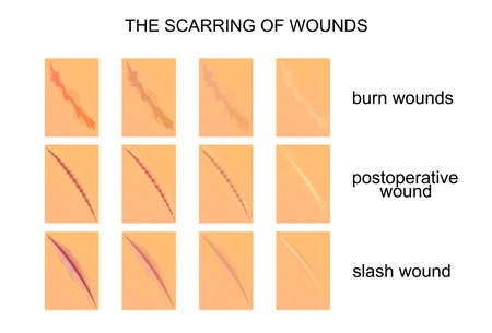 scarring: vector illustration of the scarring of wounds