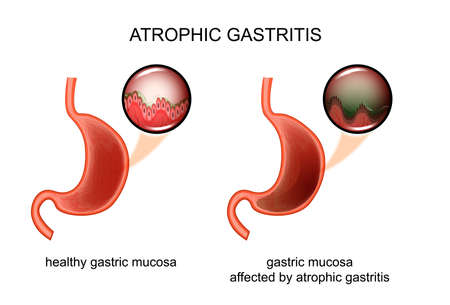 resection: vector illustration of atrophic gastritis. inflammation of the mucous membrane. Illustration