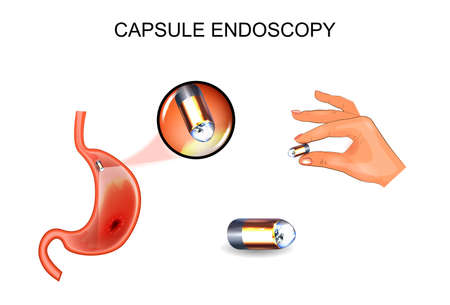 vector illustration of capsule endoscopy. EGD, gastroenterology. Ilustrace