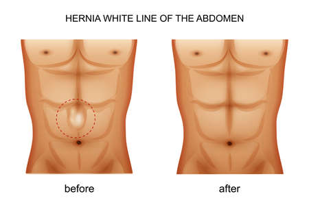 vector illustration of a hernia white line of the abdomen
