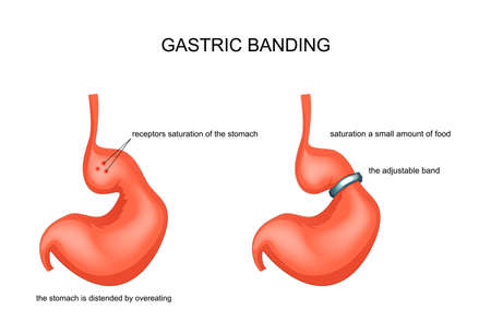 vector illustration of gastric banding, stretched from overeating