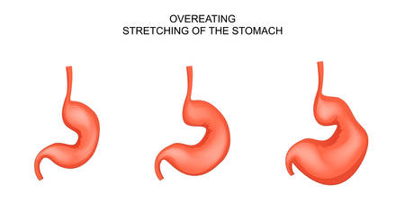 vector illustration of a stomach stretched from overeating