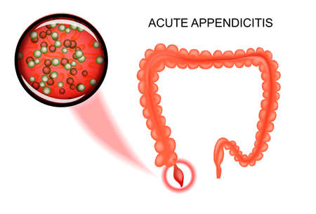 sigmoid colon: vector illustration of acute appendicitis. the bacteria, inflammation