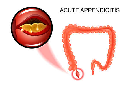 vector illustration of acute appendicitis, the inflammation of the Appendix Иллюстрация
