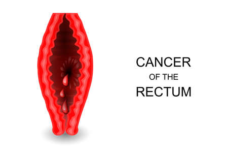 sphincter: Vector illustration of cancer of the rectum Illustration