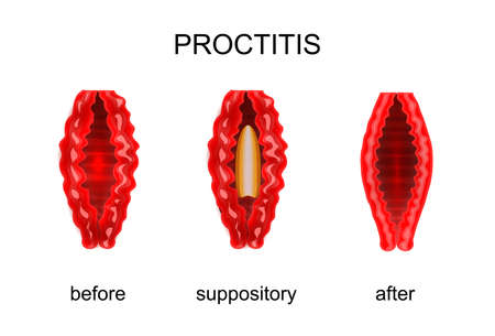 sphincter: Vector illustration of proctitis. Before and after treatment of rectal suppositories Illustration
