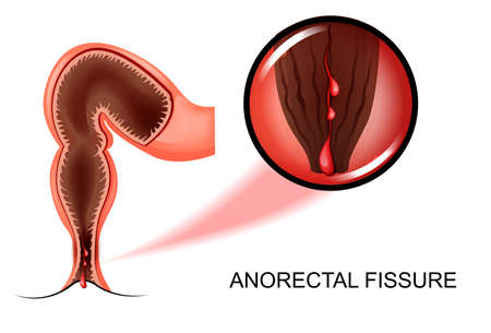 sphincter: Vector illustration of cracks in the anus Illustration