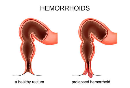 vector illustration of a prolapsed hemorrhoid veins