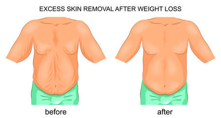 vector illustration of the removal of excess skin after weight loss