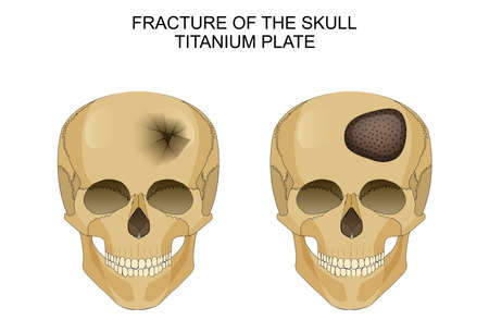 contortion: vector illustration of traumatic brain injury. titanium plate
