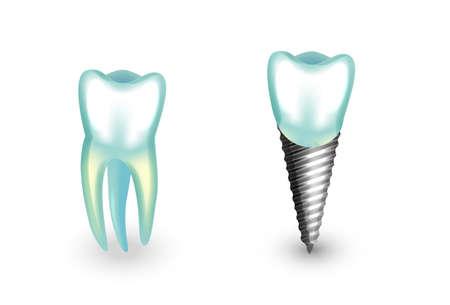 incisor: Vector illustration of a dental implant. Molar, orthodontics Illustration